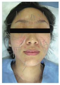Facial Acupuncture and Cosmetic Acupuncture