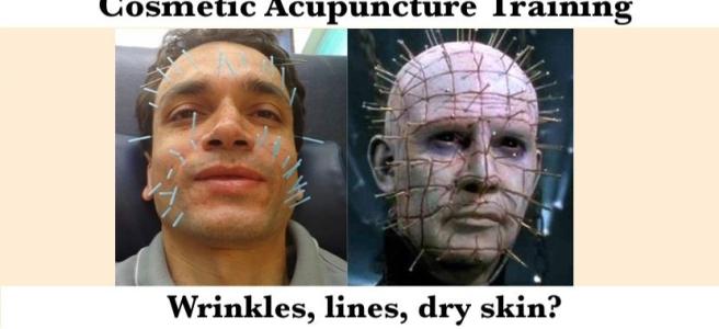facial cosmetic acupuncture takeshi kitagawa