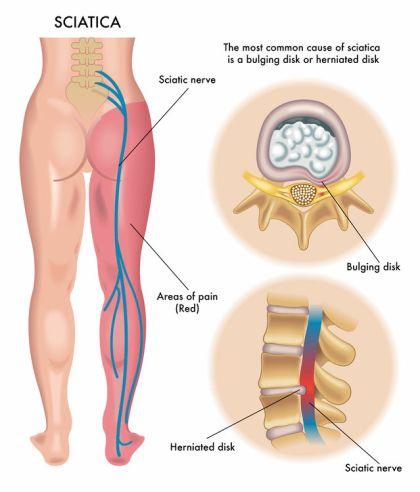 acupuncture and sciatica